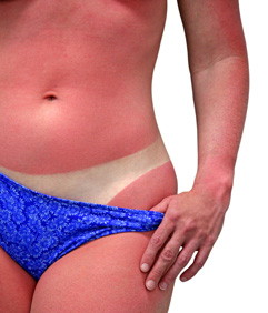 Sunburn_Boosters_Make_Sunburn_Worse